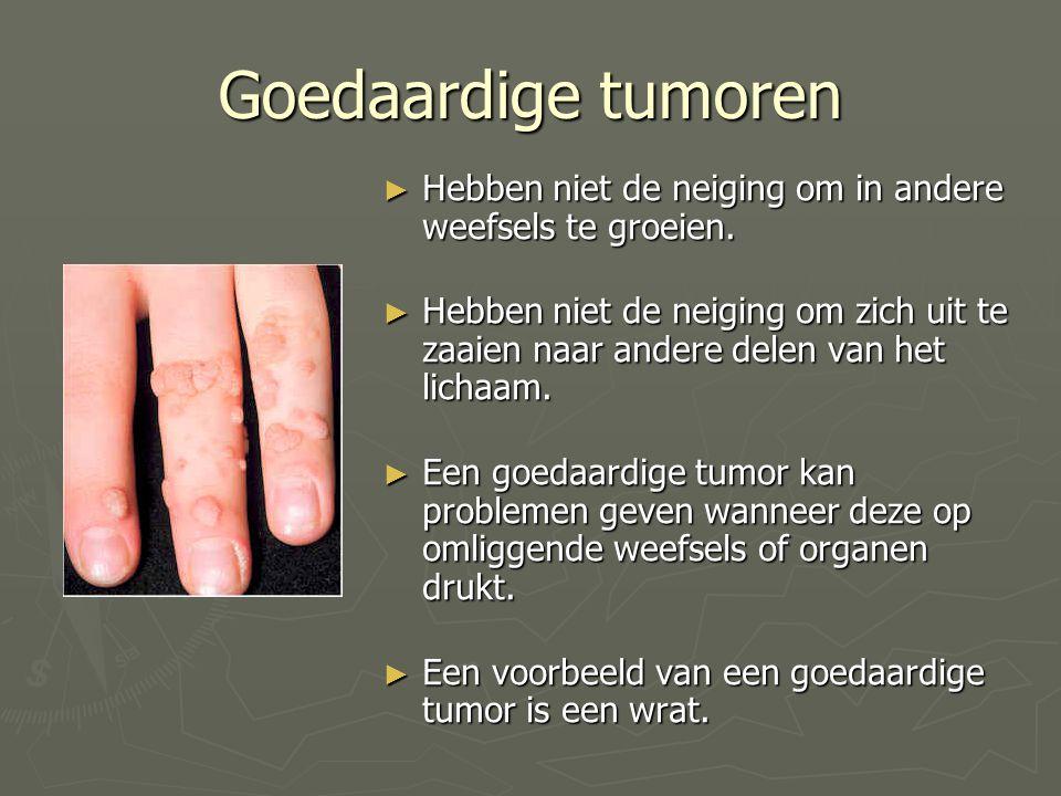 Goedaardige tumoren ► Hebben niet de neiging om in andere weefsels te groeien. ► Hebben niet de neiging om zich uit te zaaien naar andere delen van he