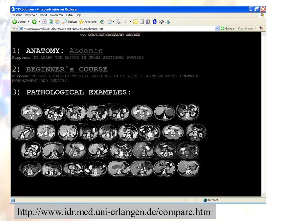 67 http://www.idr.med.uni-erlangen.de/compare.htm