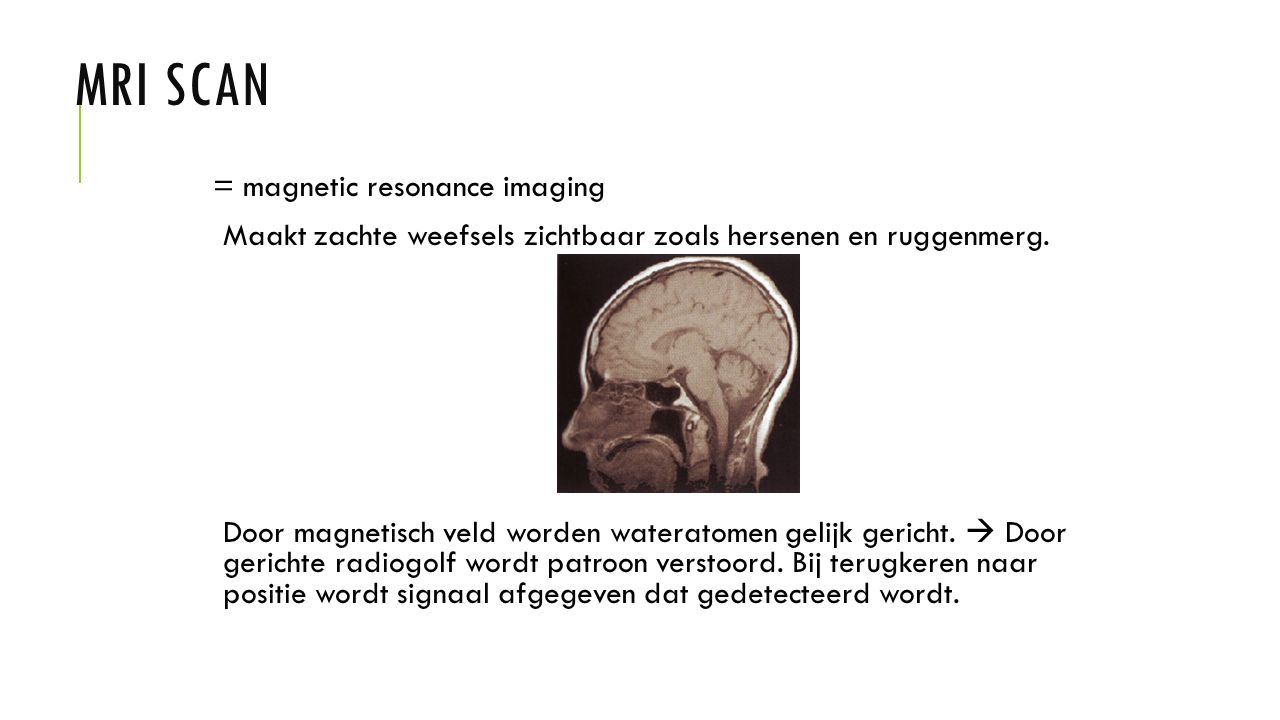 MRI SCAN = magnetic resonance imaging Maakt zachte weefsels zichtbaar zoals hersenen en ruggenmerg. Door magnetisch veld worden wateratomen gelijk ger