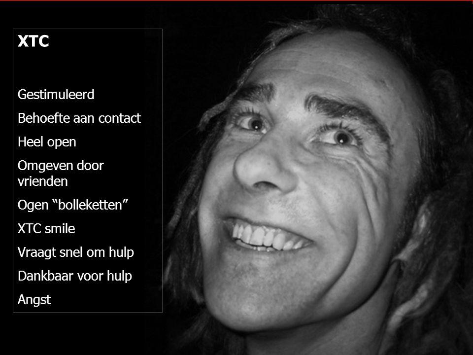 """XTC Gestimuleerd Behoefte aan contact Heel open Omgeven door vrienden Ogen """"bolleketten"""" XTC smile Vraagt snel om hulp Dankbaar voor hulp Angst"""