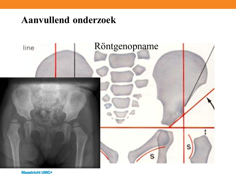Aanvullend onderzoek Röntgenopname