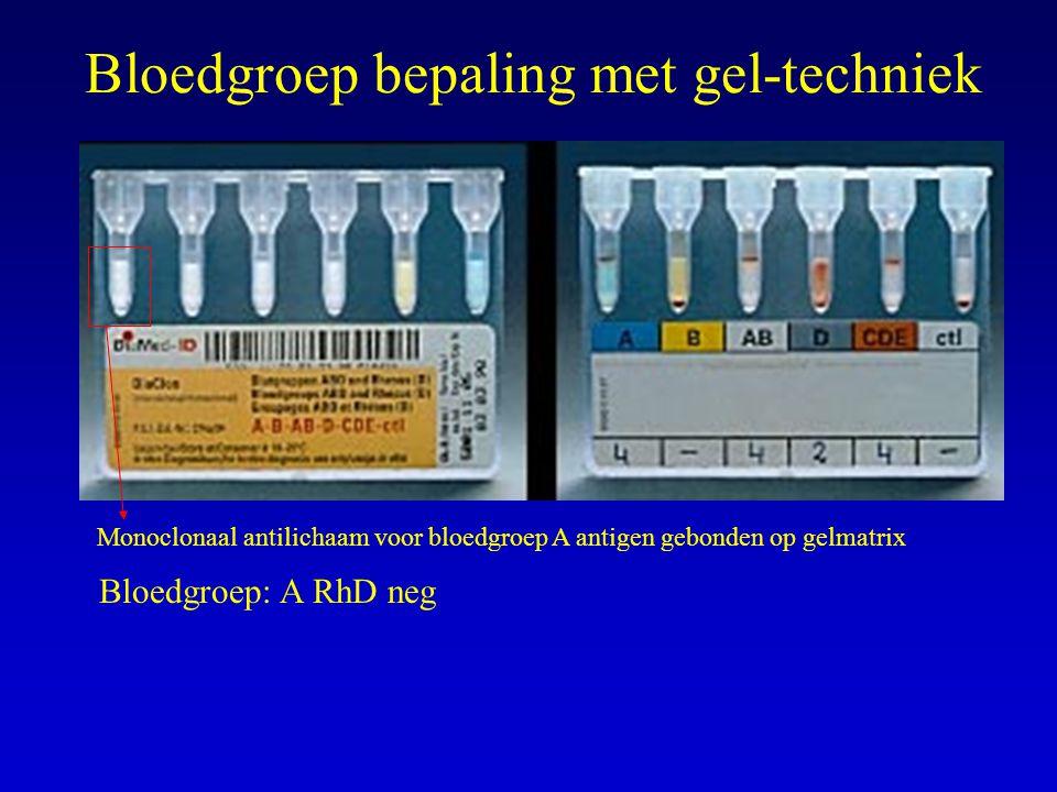 Bloedgroep bepaling met gel-techniek Bloedgroep: A RhD neg Monoclonaal antilichaam voor bloedgroep A antigen gebonden op gelmatrix