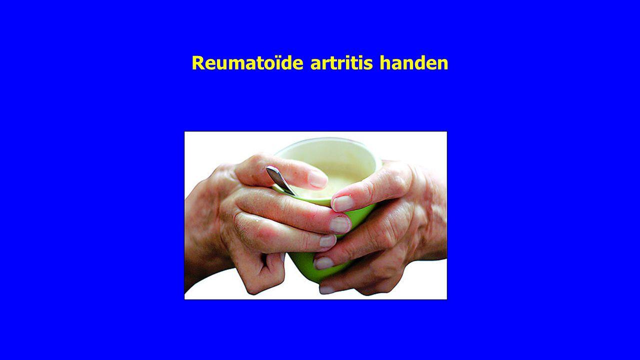 Reumatoïde artritis hand en pols