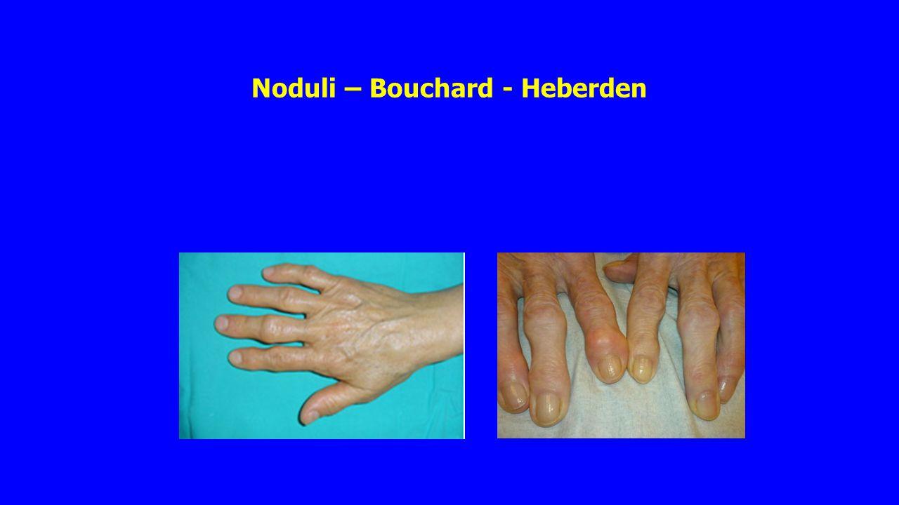 Reumatoïde artritis - gegevens Veelal een chronische en progressieve autoimmuunziekte.