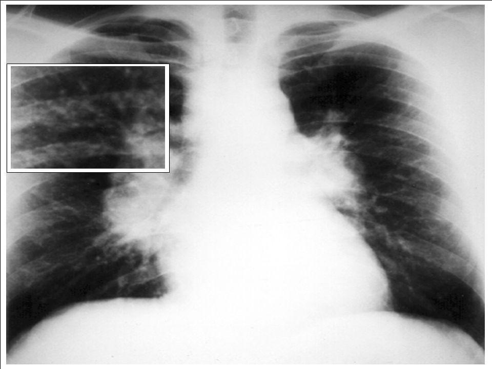 Longen van patiënten met sarcoidosis