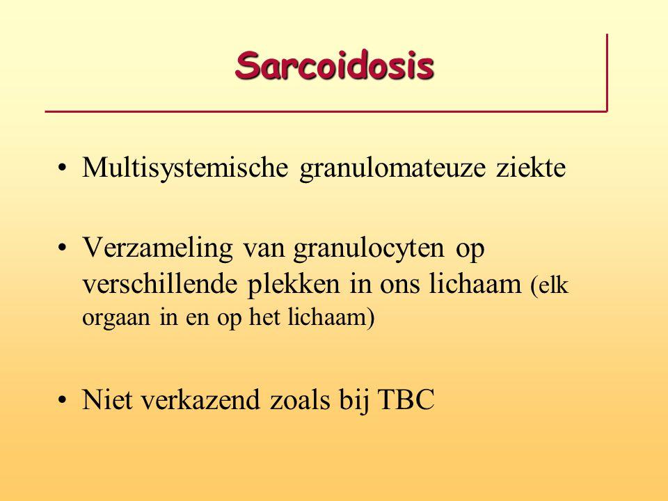 Sarcoidosis Multisystemische granulomateuze ziekte Verzameling van granulocyten op verschillende plekken in ons lichaam (elk orgaan in en op het lichaam) Niet verkazend zoals bij TBC