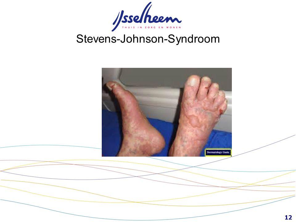 12 Stevens-Johnson-Syndroom