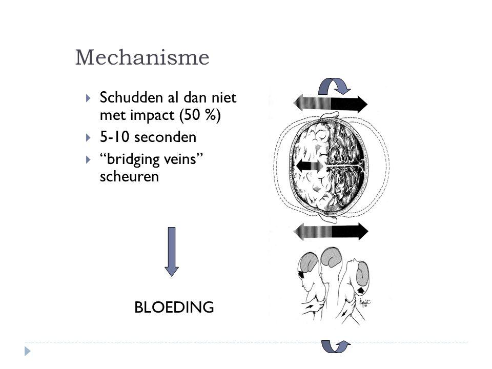 """Mechanisme  Schudden al dan niet met impact (50 %)  5-10 seconden  """"bridging veins"""" scheuren BLOEDING"""