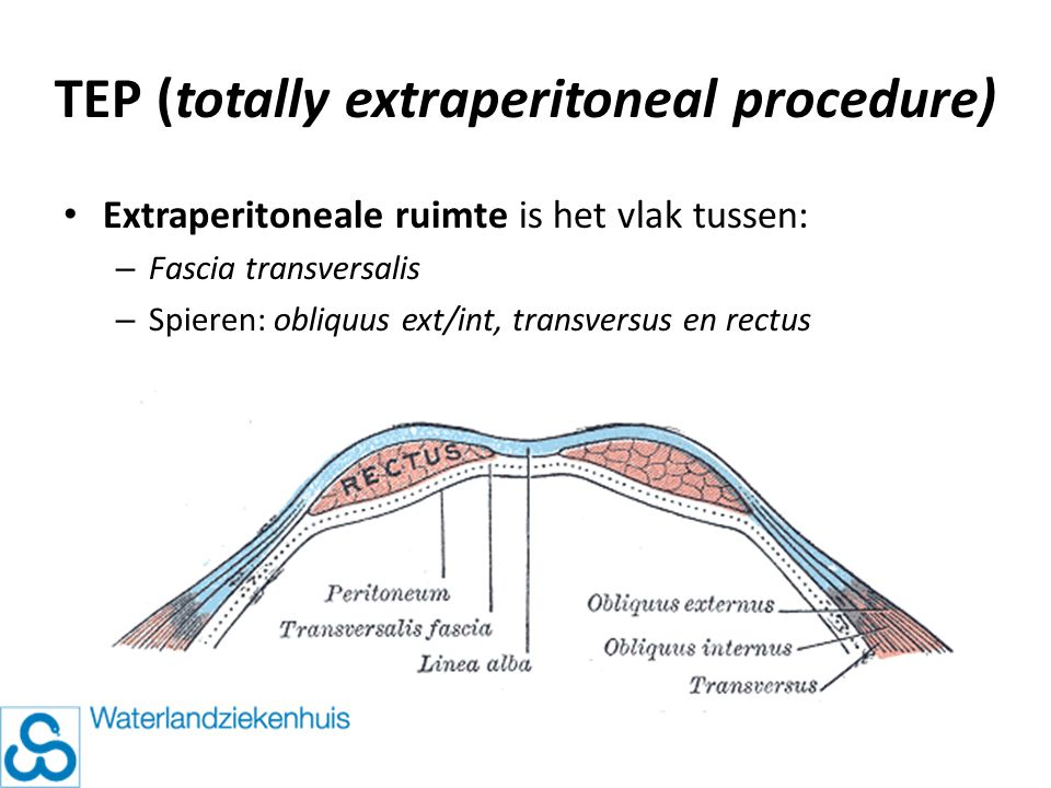 Extraperitoneale ruimte is het vlak tussen: – Fascia transversalis – Spieren: obliquus ext/int, transversus en rectus TEP (totally extraperitoneal pro