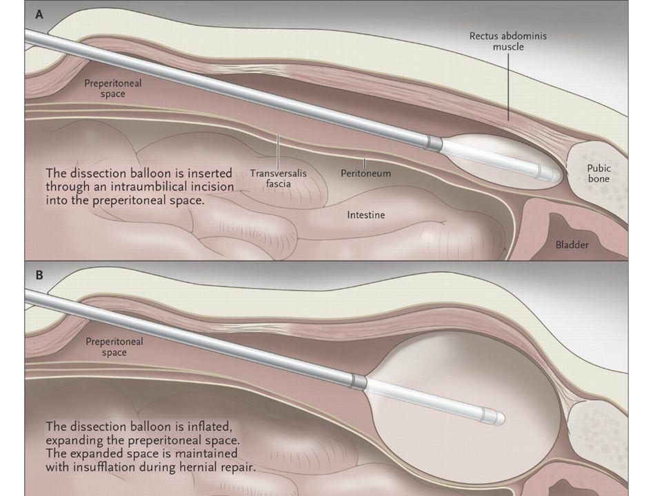 Conclusie Preventief contralateraal matje bij TEP repair van een unilaterale hernia.