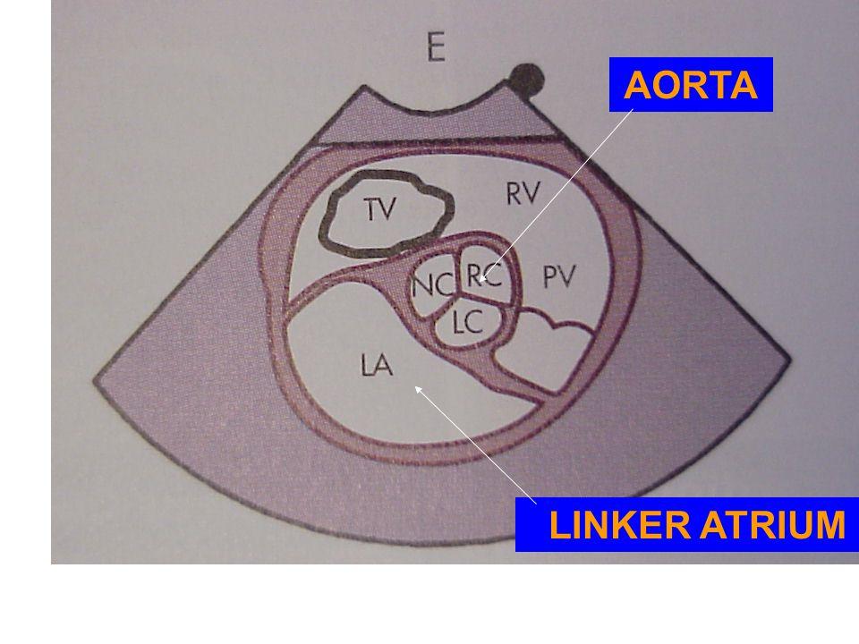 AORTA LINKER ATRIUM