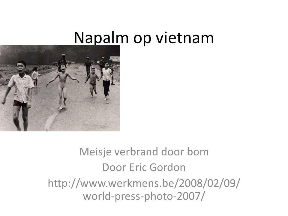 Napalm op vietnam Meisje verbrand door bom Door Eric Gordon http://www.werkmens.be/2008/02/09/ world-press-photo-2007/