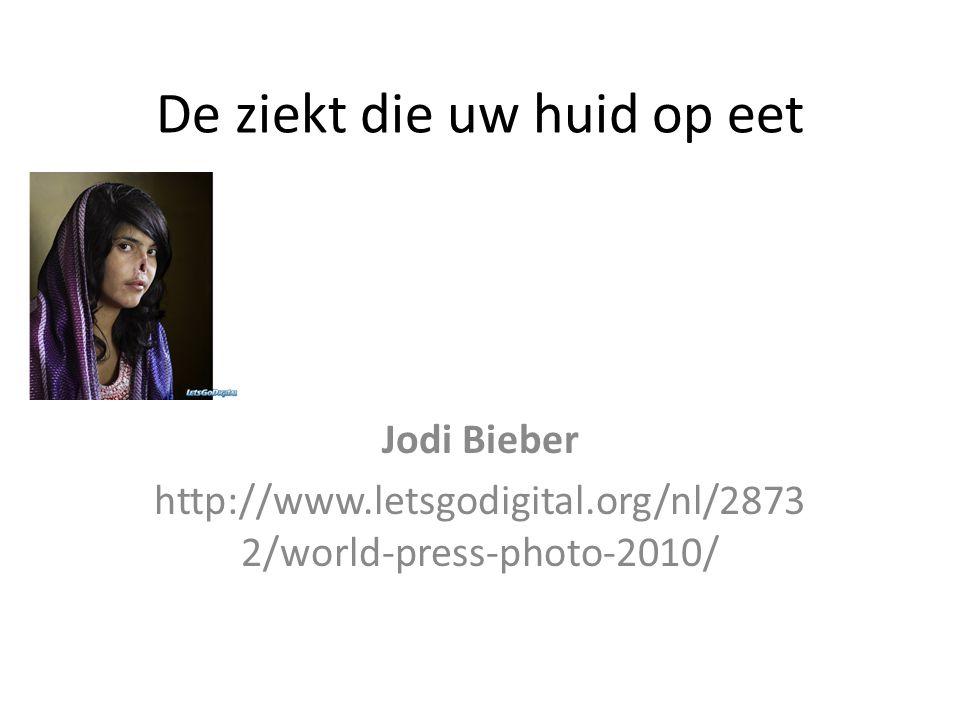 De ziekt die uw huid op eet Jodi Bieber http://www.letsgodigital.org/nl/2873 2/world-press-photo-2010/