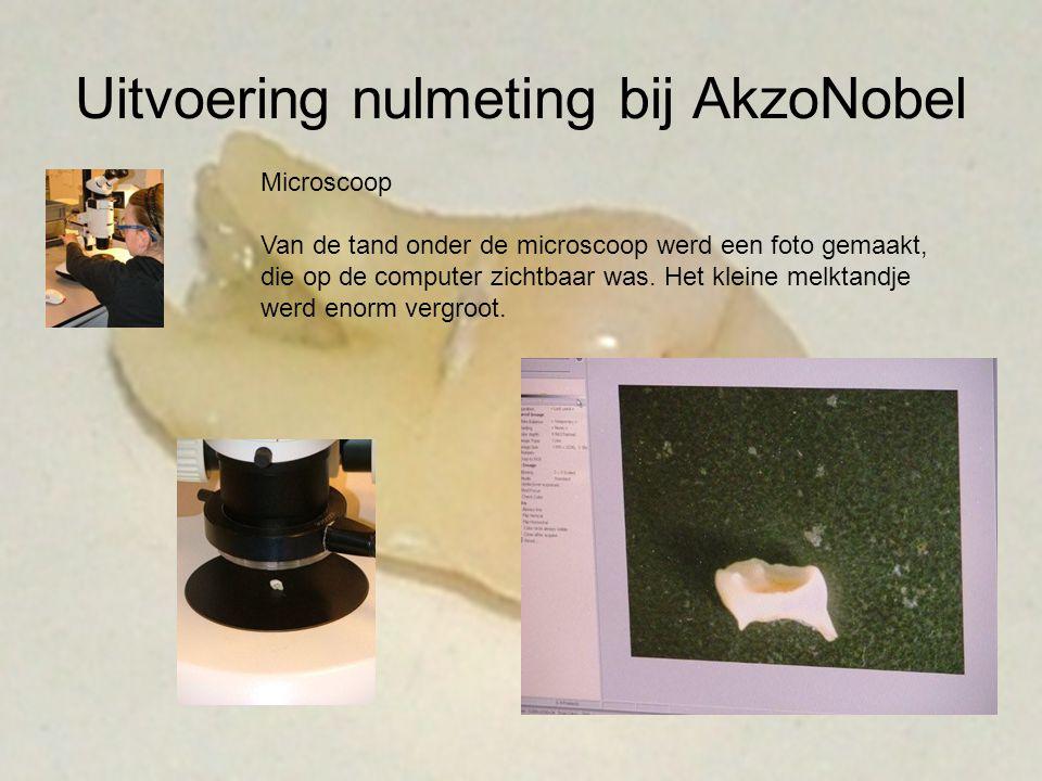 Uitvoering nulmeting bij AkzoNobel Microscoop Van de tand onder de microscoop werd een foto gemaakt, die op de computer zichtbaar was. Het kleine melk