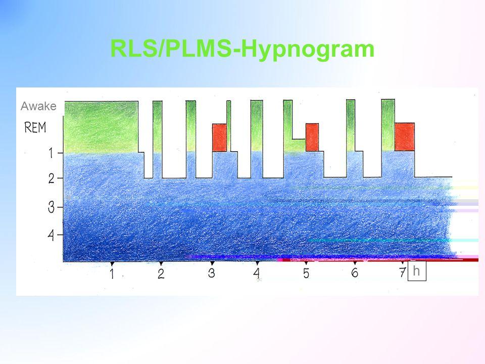 Awake h RLS/PLMS-Hypnogram
