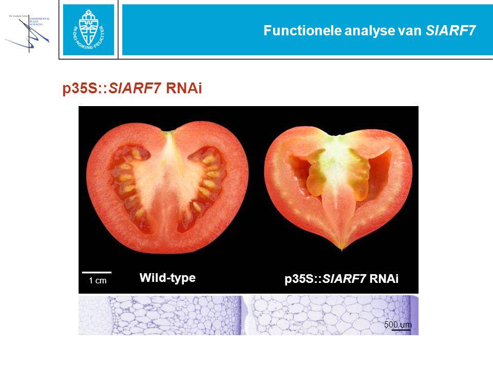 Functionele analyse van SlARF7 1cm Wild-type p35S::SlARF7 RNAi 500 um