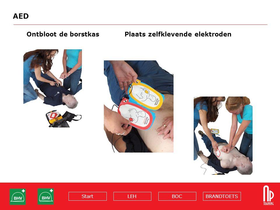 BRANDTOETSBOCLEHStart AED Ontbloot de borstkasPlaats zelfklevende elektroden