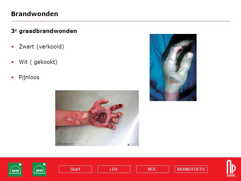 BRANDTOETSBOCLEHStart Brandwonden 3 e graadbrandwonden Zwart (verkoold) Wit ( gekookt) Pijnloos