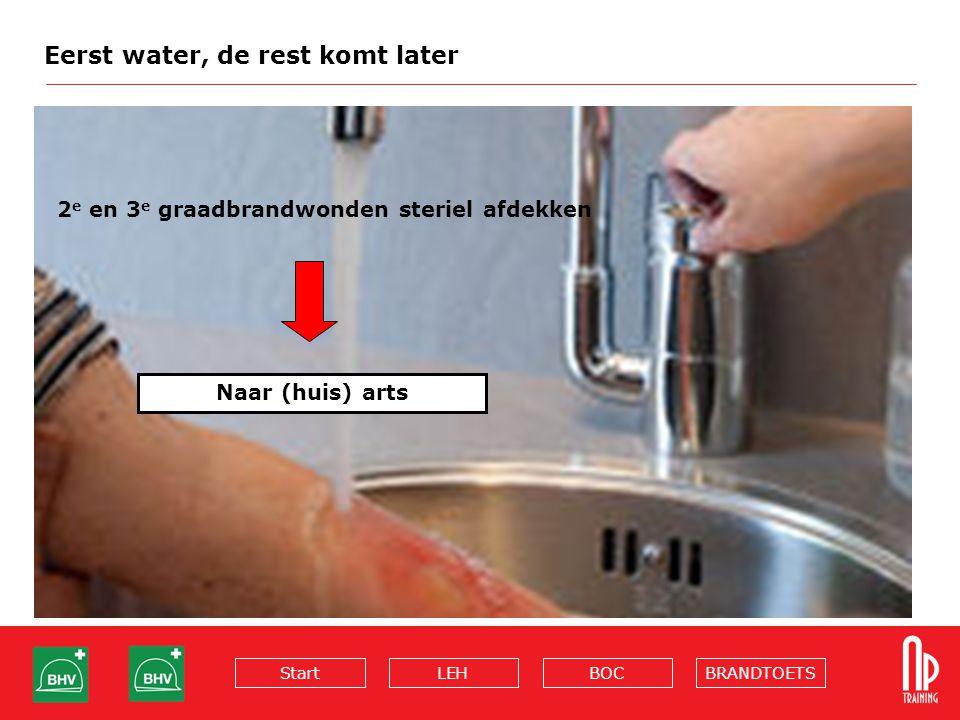 BRANDTOETSBOCLEHStart Eerst water, de rest komt later 2 e en 3 e graadbrandwonden steriel afdekken Naar (huis) arts