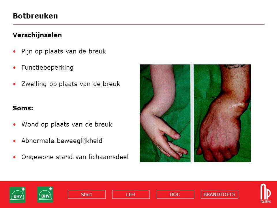 BRANDTOETSBOCLEHStart Botbreuken Verschijnselen Pijn op plaats van de breuk Functiebeperking Zwelling op plaats van de breuk Soms: Wond op plaats van de breuk Abnormale beweeglijkheid Ongewone stand van lichaamsdeel