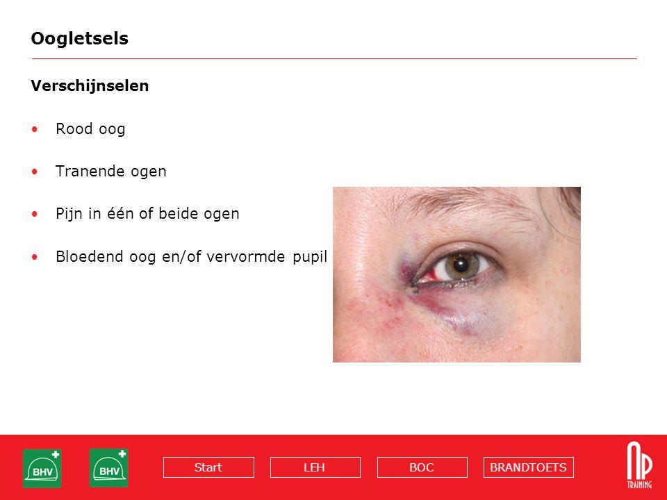 BRANDTOETSBOCLEHStart Oogletsels Verschijnselen Rood oog Tranende ogen Pijn in één of beide ogen Bloedend oog en/of vervormde pupil