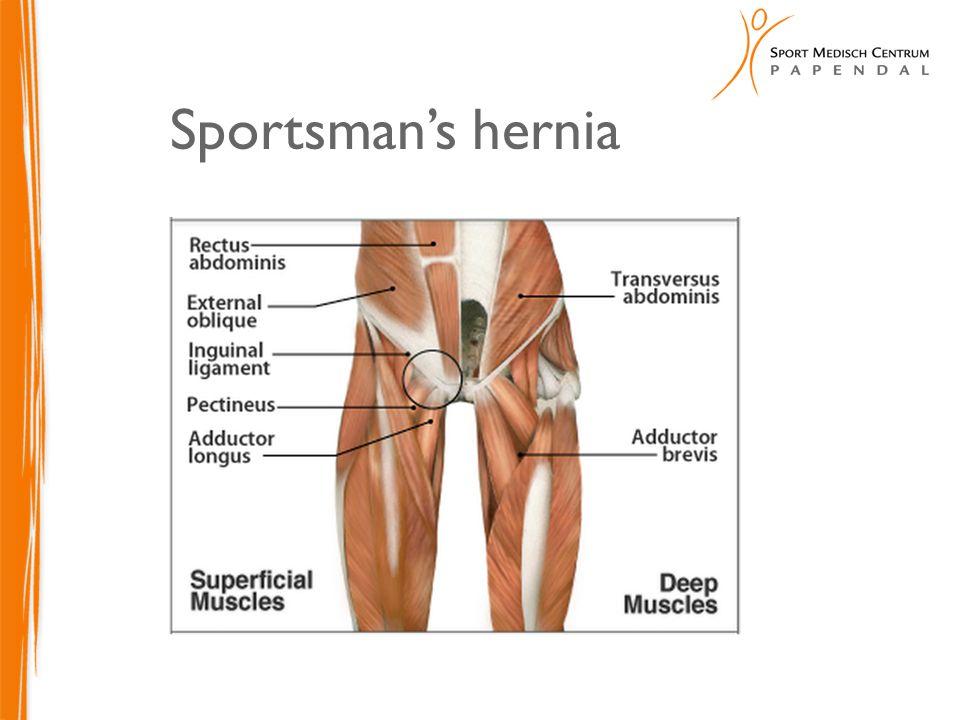 Sportsman's hernia