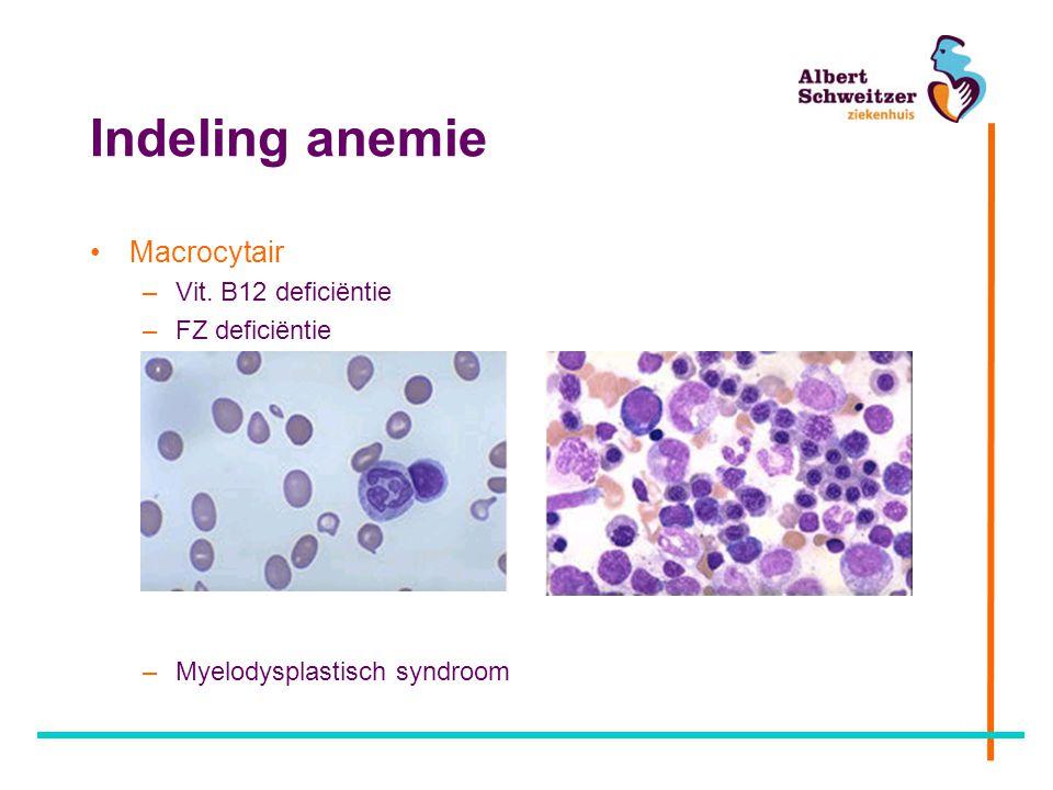 Indeling anemie Macrocytair –Vit. B12 deficiëntie –FZ deficiëntie –Myelodysplastisch syndroom