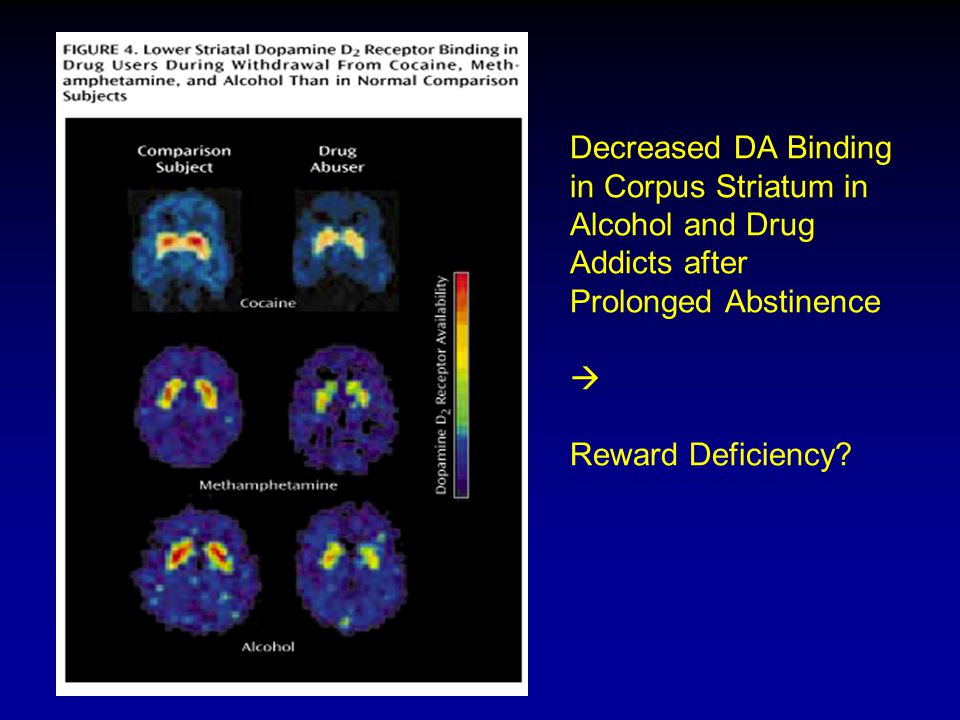 Decreased DA Binding in Corpus Striatum in Alcohol and Drug Addicts after Prolonged Abstinence  Reward Deficiency?
