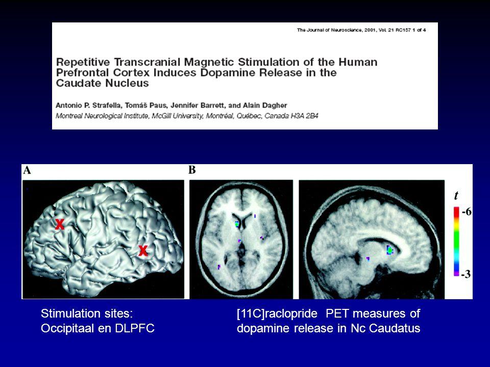 Stimulation sites:[11C]raclopride PET measures of Occipitaal en DLPFCdopamine release in Nc Caudatus
