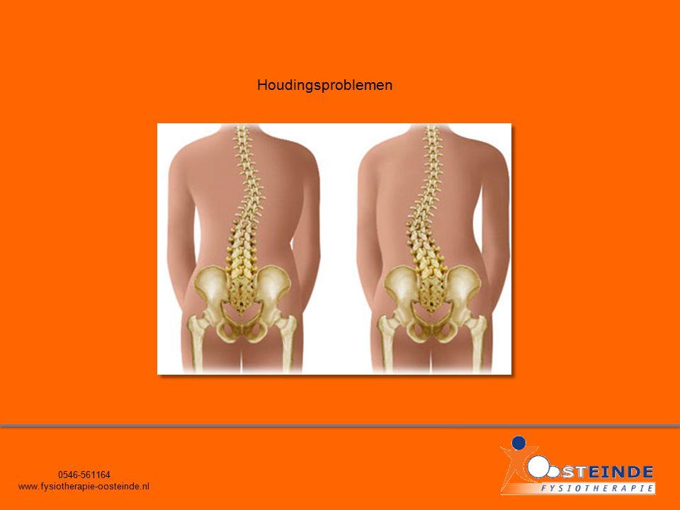 0546-561164 www.fysiotherapie-oosteinde.nl Houdingsproblemen