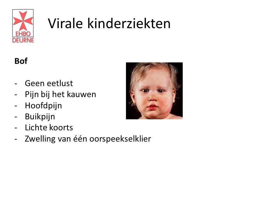 Virale kinderziekten Bof -Geen eetlust -Pijn bij het kauwen -Hoofdpijn -Buikpijn -Lichte koorts -Zwelling van één oorspeekselklier