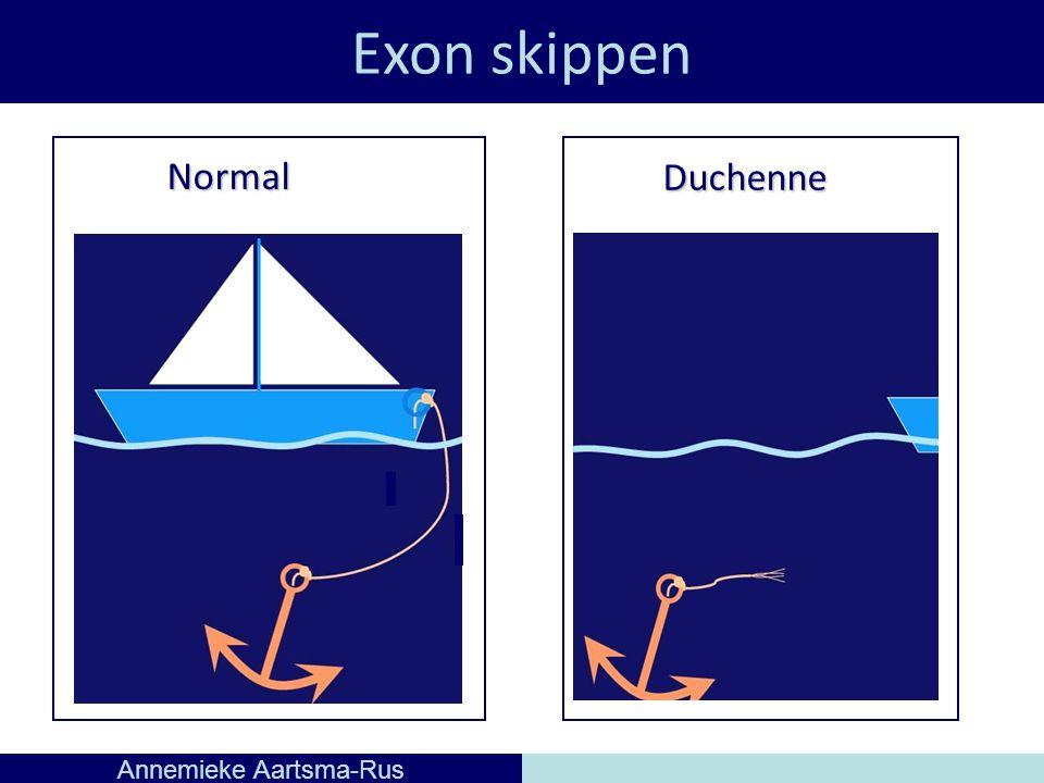 Exon skippen Annemieke Aartsma-Rus Normal Duchenne
