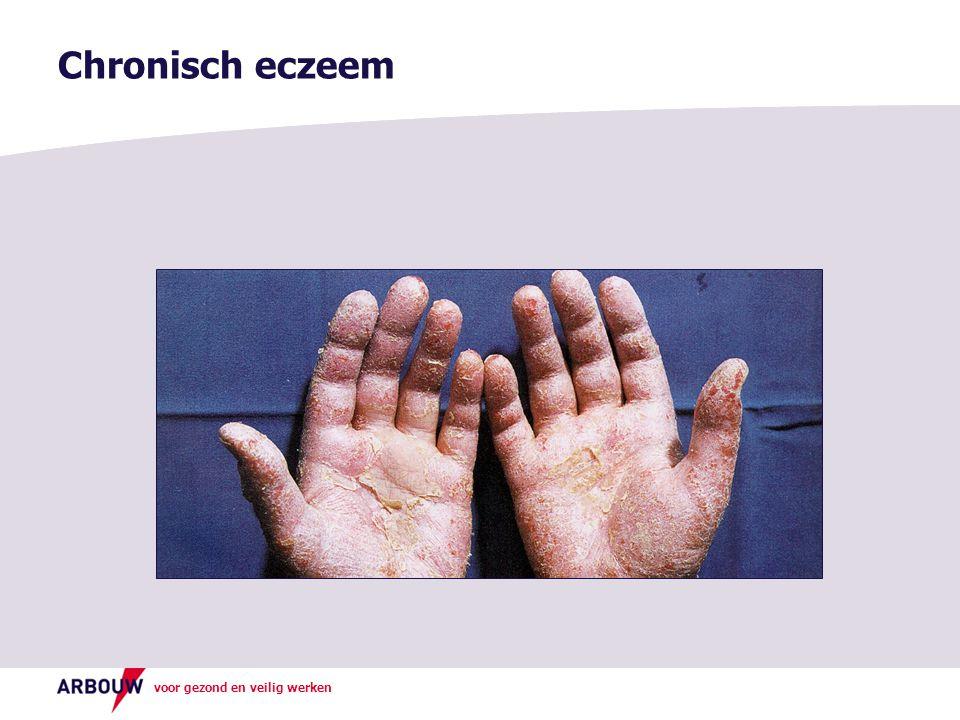 voor gezond en veilig werken Chronisch eczeem