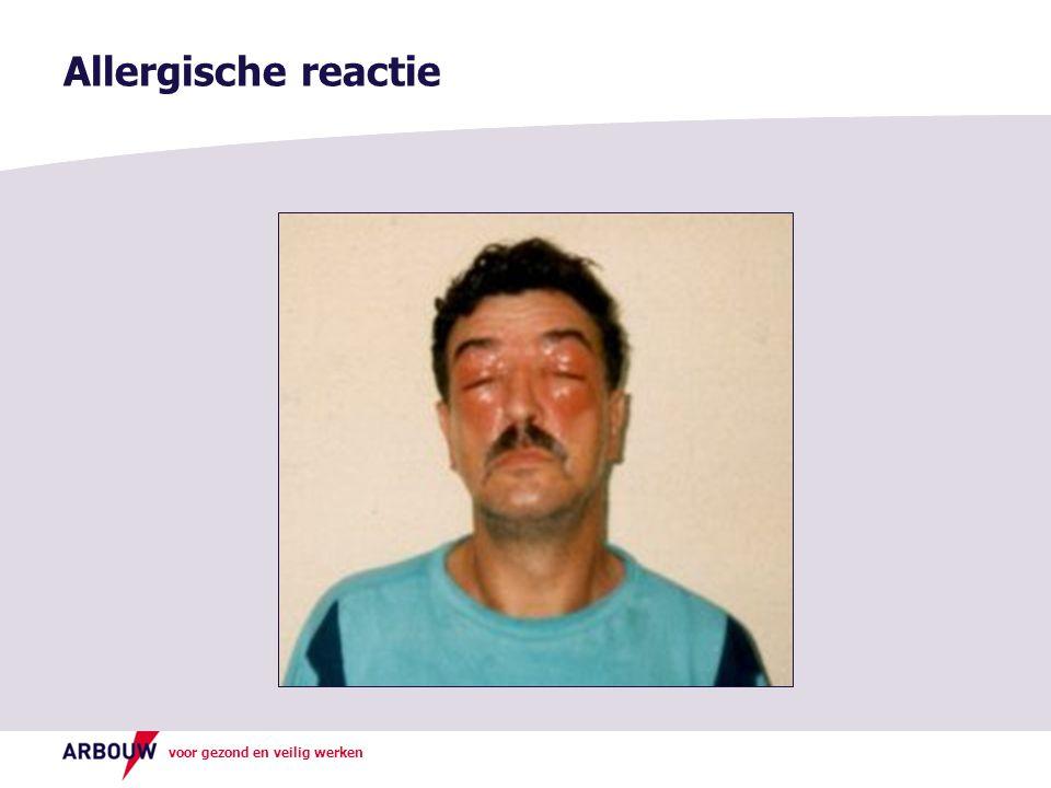 voor gezond en veilig werken Allergische reactie