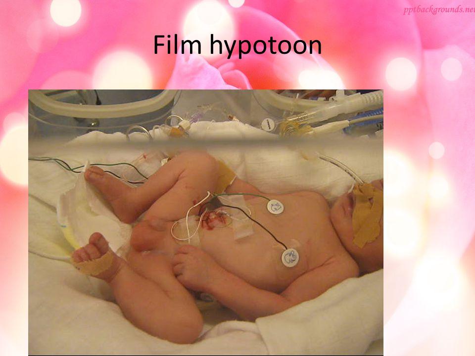 Film hypotoon