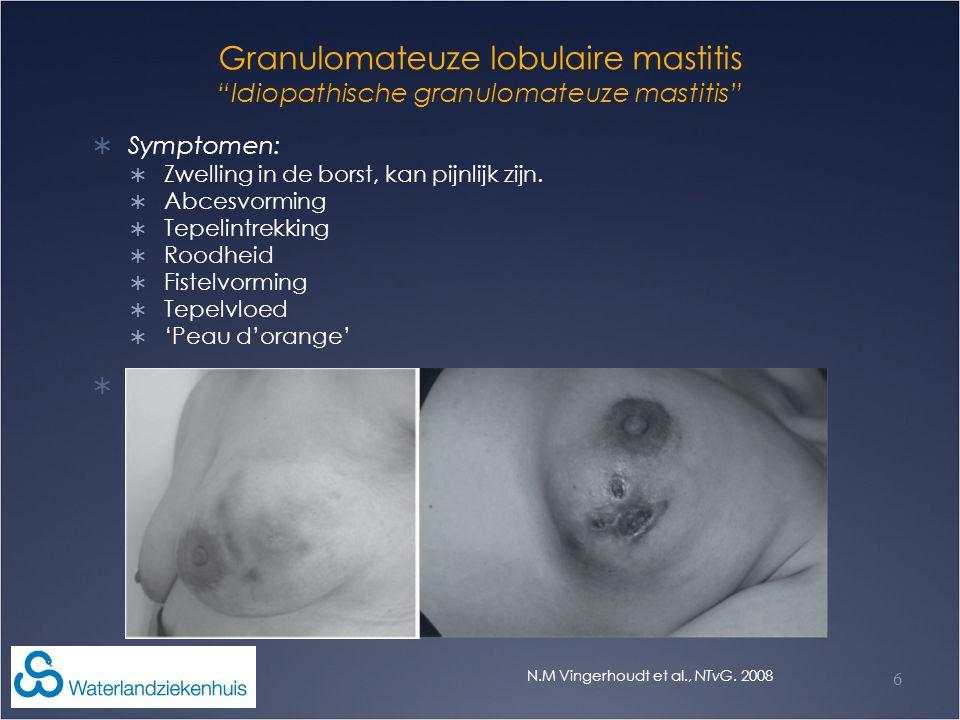 """Granulomateuze lobulaire mastitis """"Idiopathische granulomateuze mastitis""""  Symptomen:  Zwelling in de borst, kan pijnlijk zijn.  Abcesvorming  Tep"""