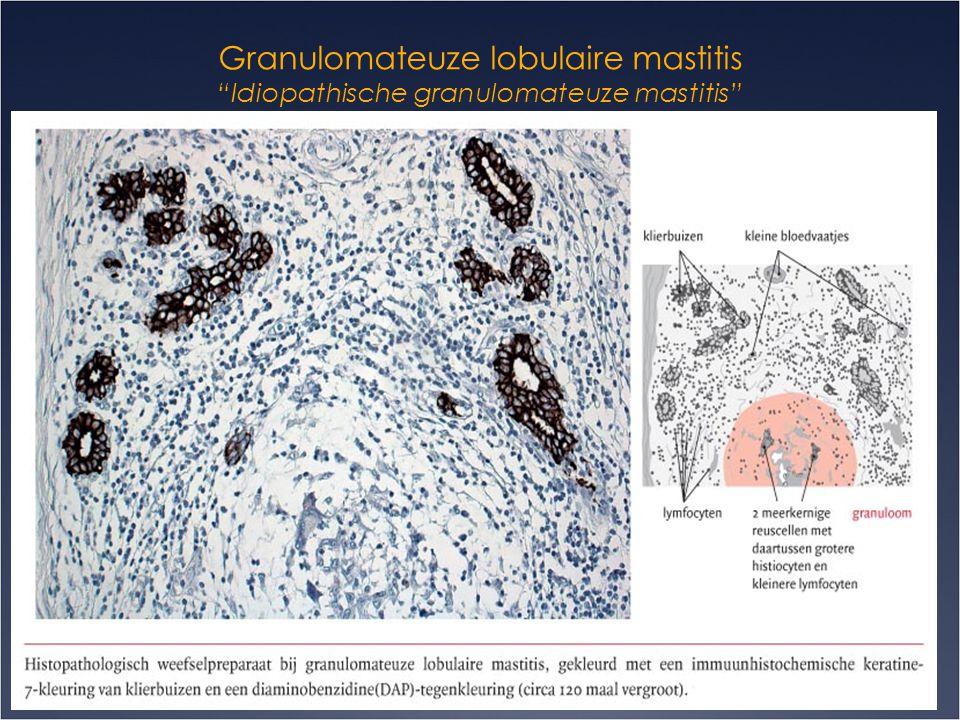 "Granulomateuze lobulaire mastitis ""Idiopathische granulomateuze mastitis""  Diagnose:  Mammografie & echo: Vaak irregulaire massa zichtbaar met tubul"