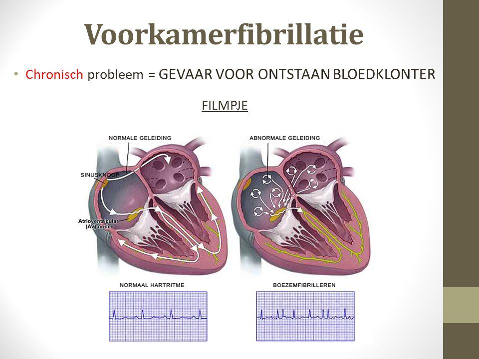Heup- of knieoperatie Acuut probleem = GEVAAR VOOR ONTSTAAN BLOEDKLONTER FILMPJE