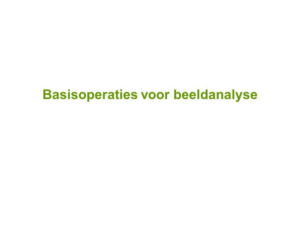 Basisoperaties voor beeldanalyse Randdetectie