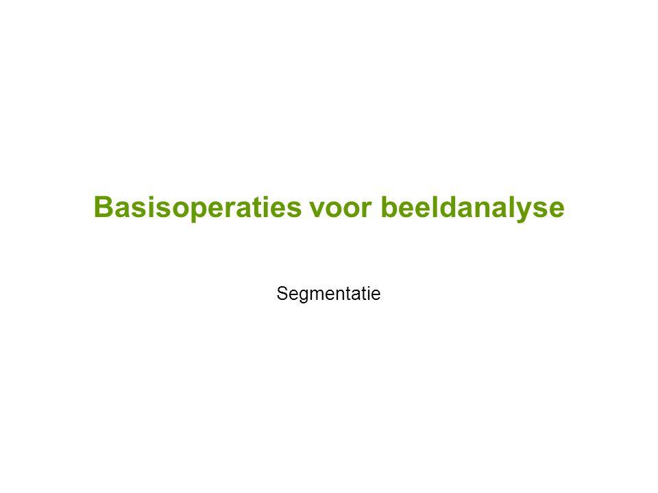 Basisoperaties voor beeldanalyse Segmentatie