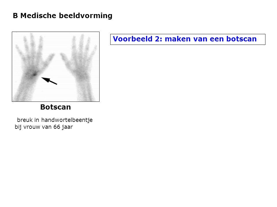 B Medische beeldvorming Voorbeeld 2: maken van een botscan Botscan breuk in handwortelbeentje bij vrouw van 66 jaar