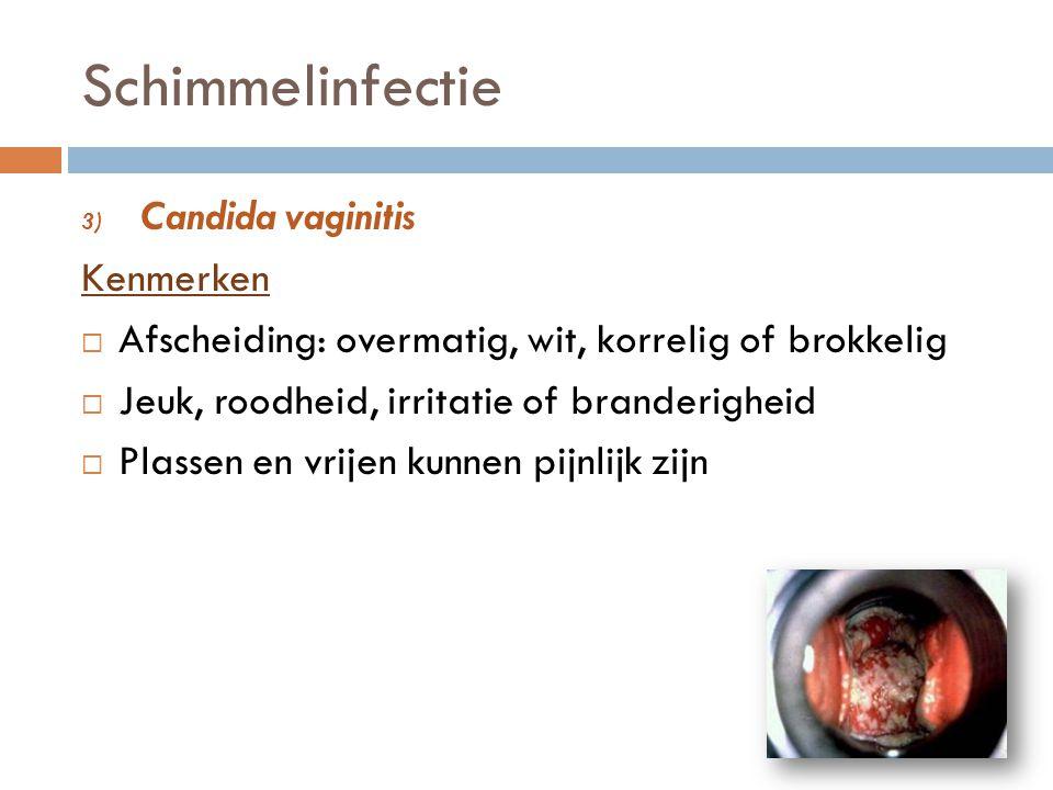 Schimmelinfectie 3) Candida vaginitis Kenmerken  Afscheiding: overmatig, wit, korrelig of brokkelig  Jeuk, roodheid, irritatie of branderigheid  Pl