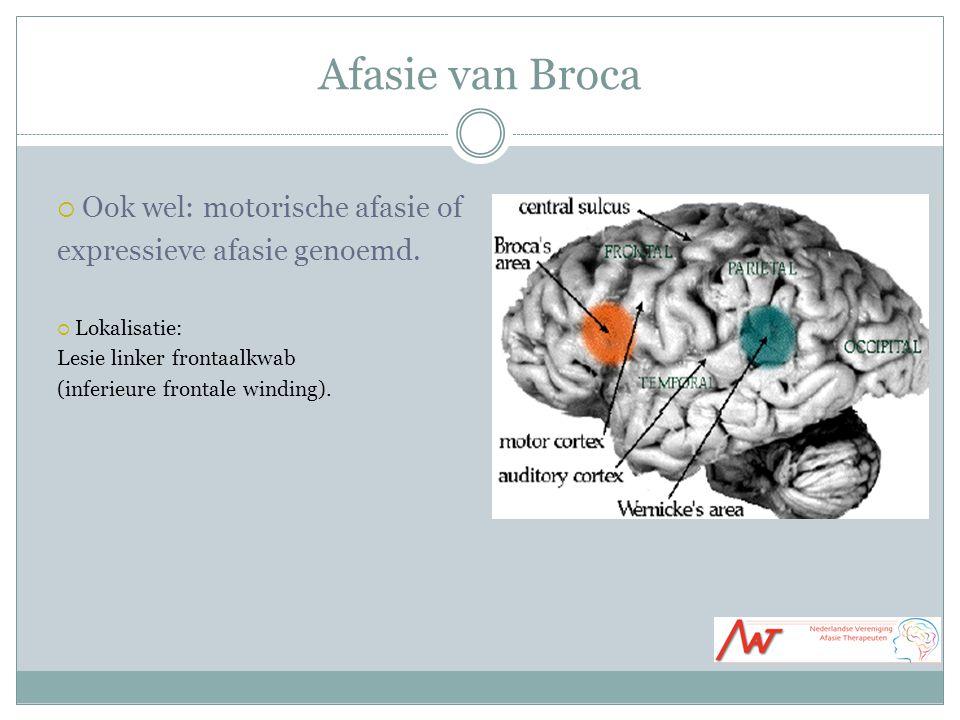 Afasie van Broca  Ook wel: motorische afasie of expressieve afasie genoemd.  Lokalisatie: Lesie linker frontaalkwab (inferieure frontale winding).