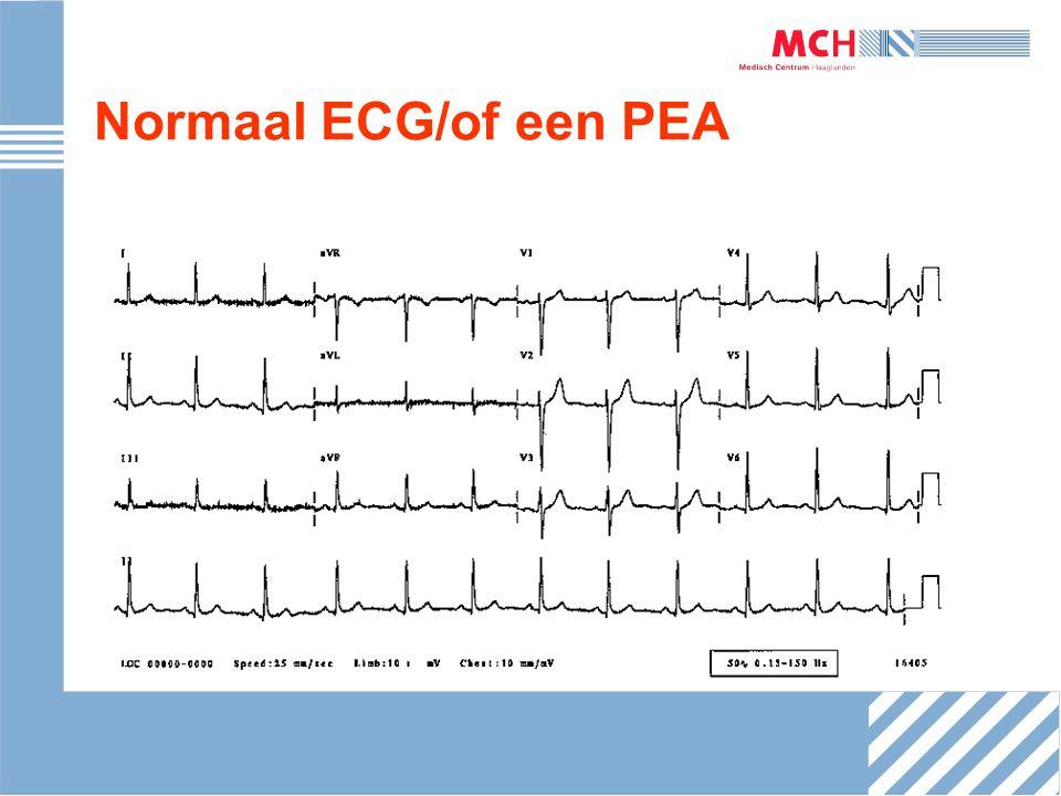 Normaal ECG/of een PEA