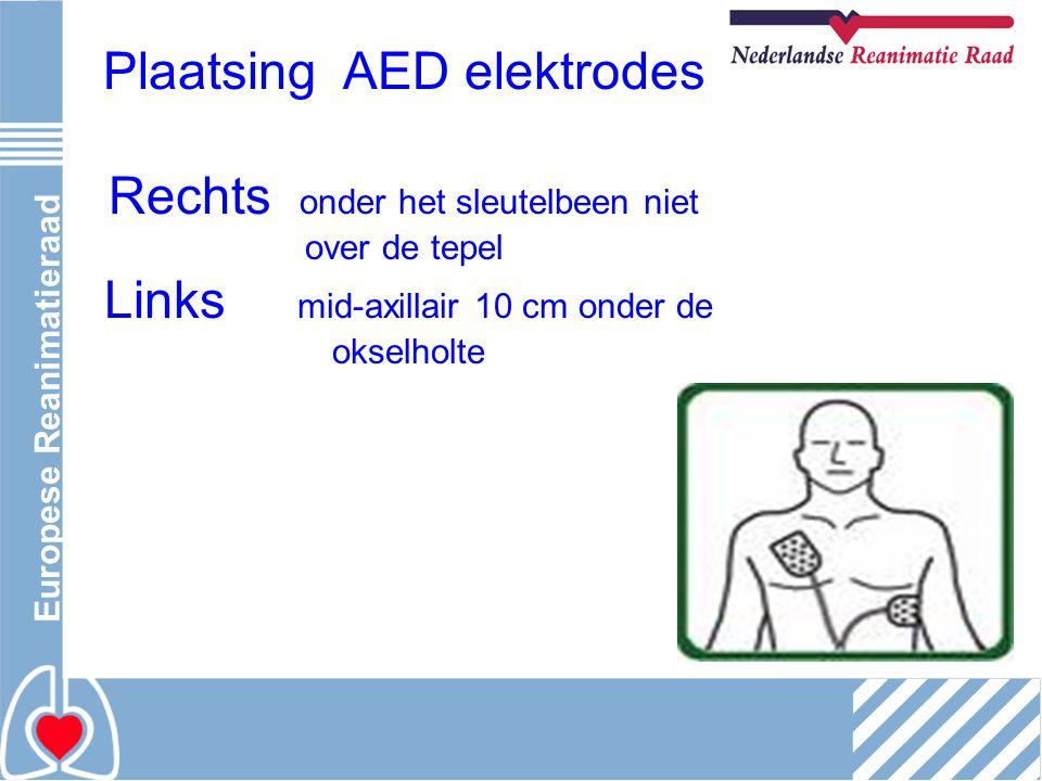 Europese Reanimatieraad Plaatsing AED elektrodes Rechts onder het sleutelbeen niet over de tepel Links mid-axillair 10 cm onder de okselholte