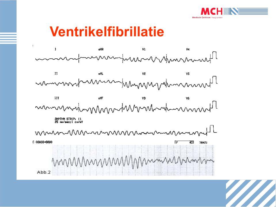 Ventrikeltachycardie