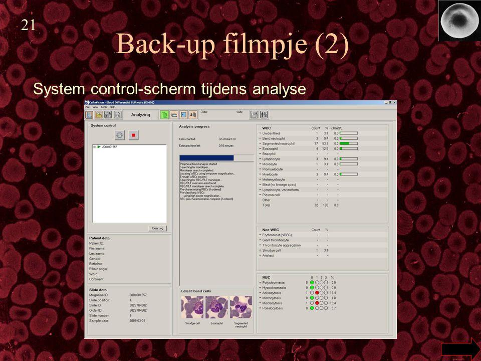 Back-up filmpje (2) System control-scherm tijdens analyse 21