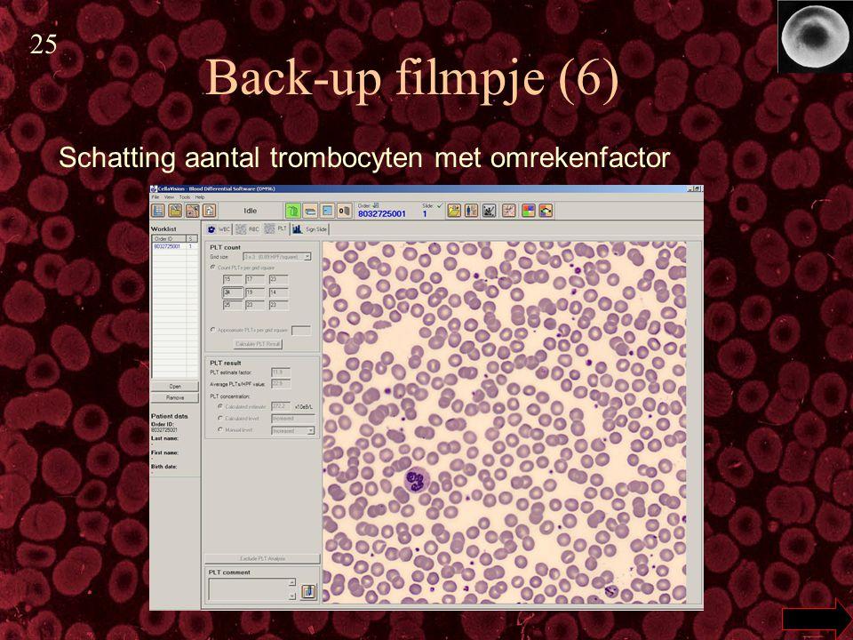 Back-up filmpje (6) Schatting aantal trombocyten met omrekenfactor 25