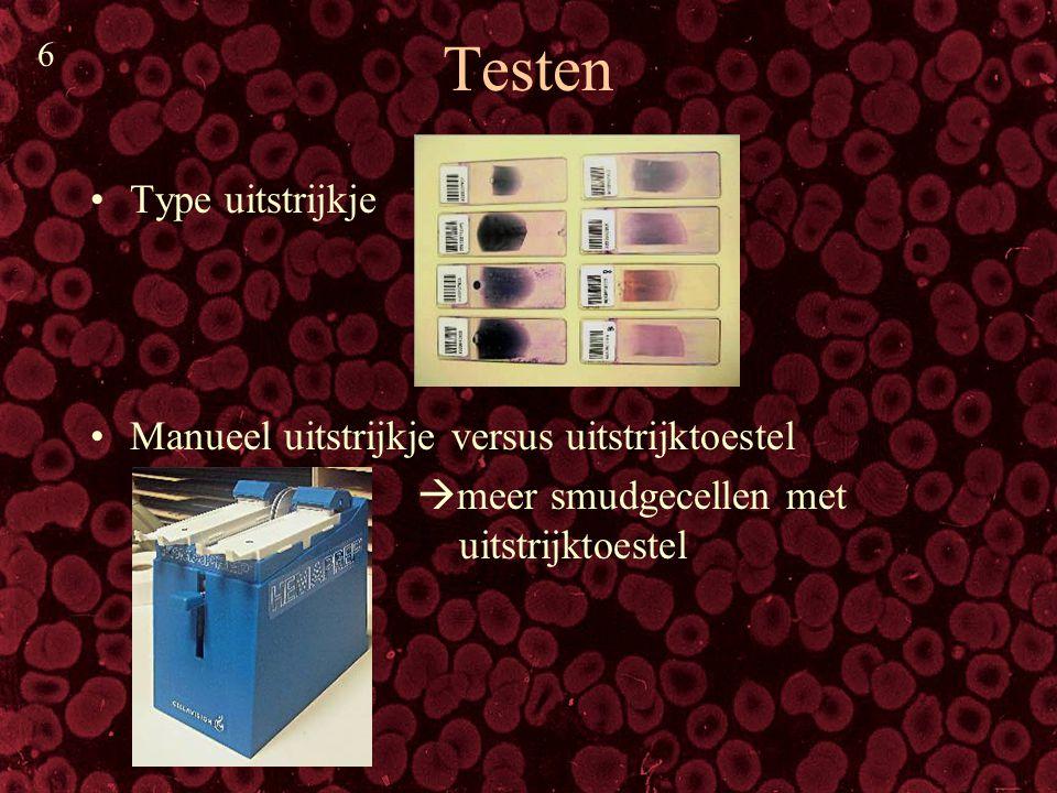 Testen (2) Verschillende buffers  minder artefacten met nieuwe buffer Pediatrisch bloed = kdn < 2 jaar oud (op 5 stalen)  geen probleem voor Cellavision Beenmergstaal: goede resultaten na herclass.