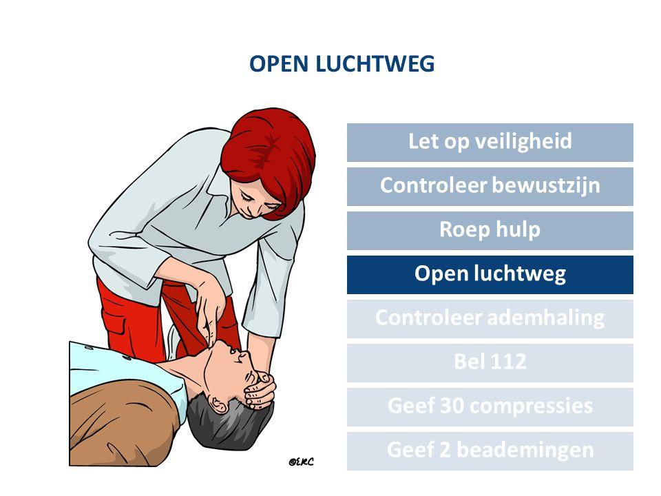 OPEN LUCHTWEG Let op veiligheid Controleer bewustzijn Roep hulp Open luchtweg Controleer ademhaling Bel 112 Geef 30 compressies Geef 2 beademingen